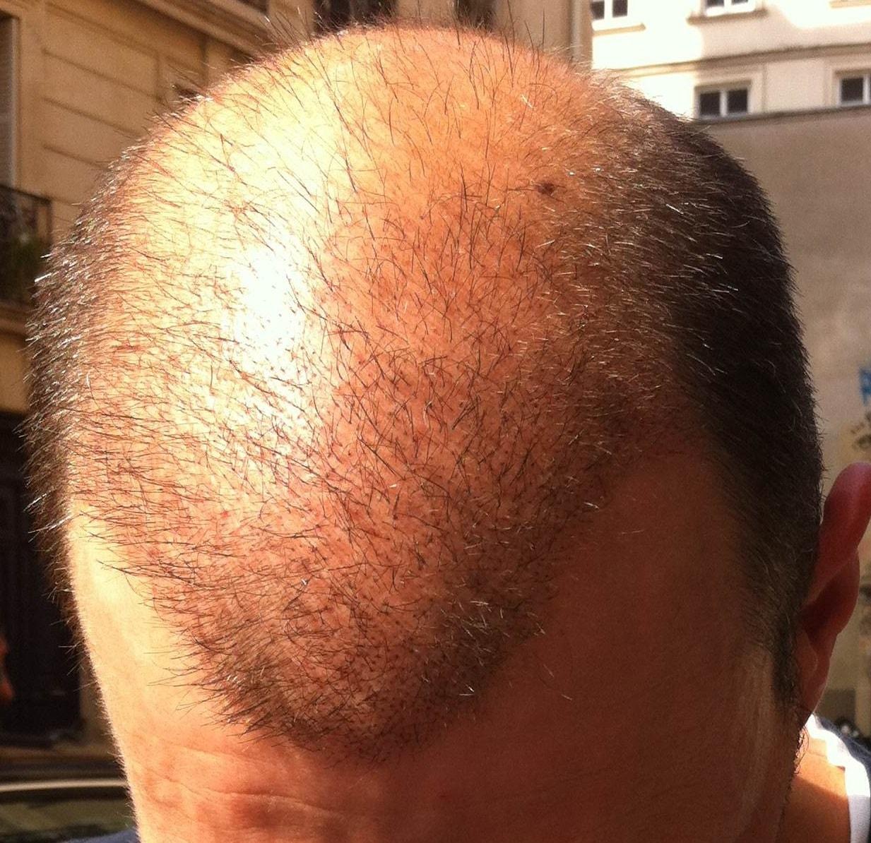3 semaines apres greffe de cheveux