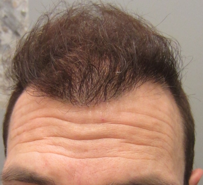 6 months after hair transplant