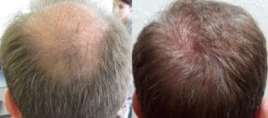 fabrice-before-after