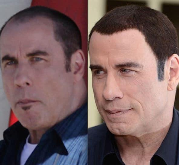 Greffe de cheveux John Travolta