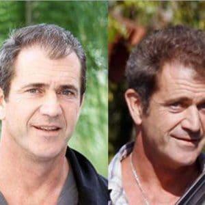 Greffe de cheveux Mel Gibson