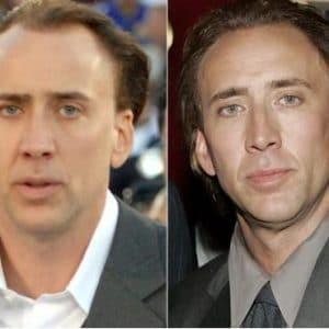 Greffe de cheveux Nicolas Cage