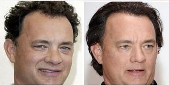 Greffe de cheveux Tom Hanks