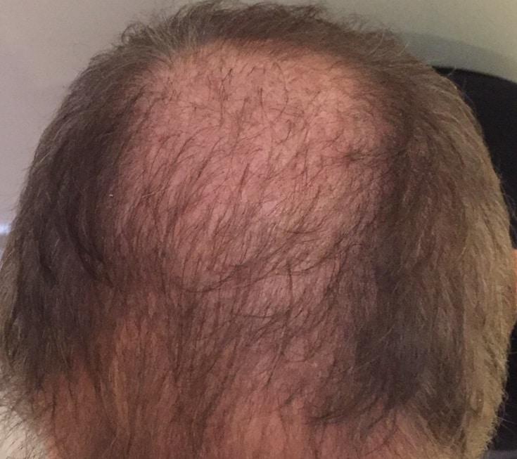 3-months-vertex-greffe-de-cheveux