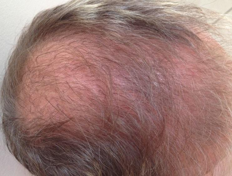 before-vertex-hair-transpant