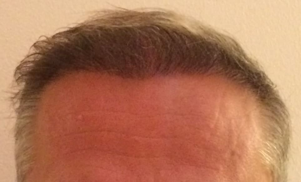 front-hair-transplant-6-months
