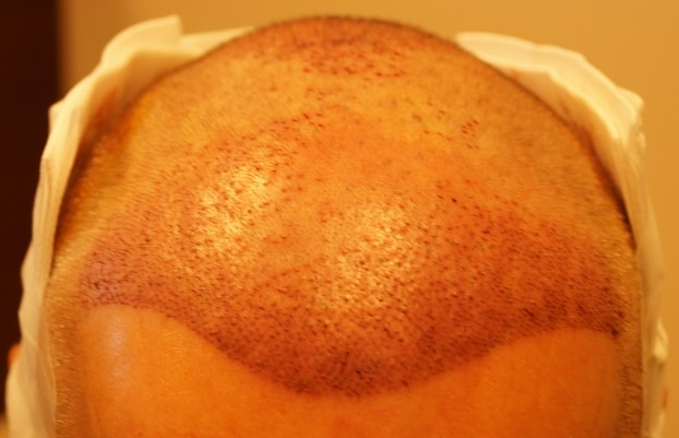 front-hair-transplant-surgery-after