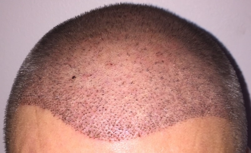 hair-transplant-front-1-week