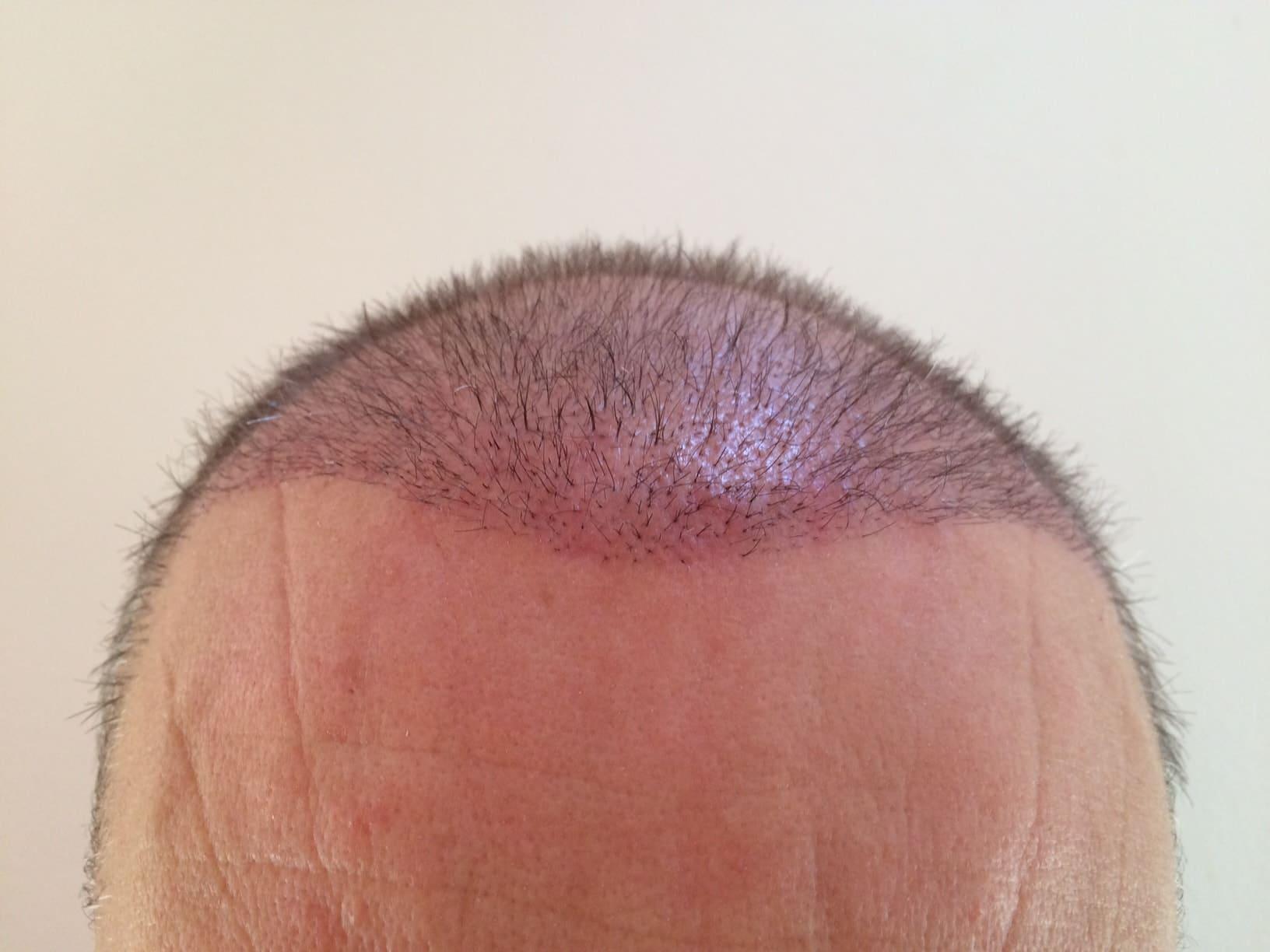 hair-transplantation-3-weeks