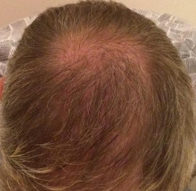 vertex-hair-transplant-surgery-6-months