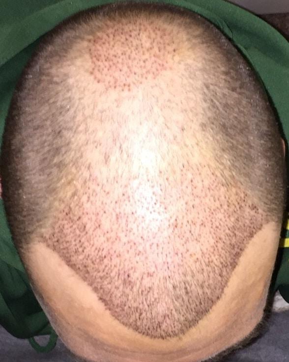 1-week-hair-transplant