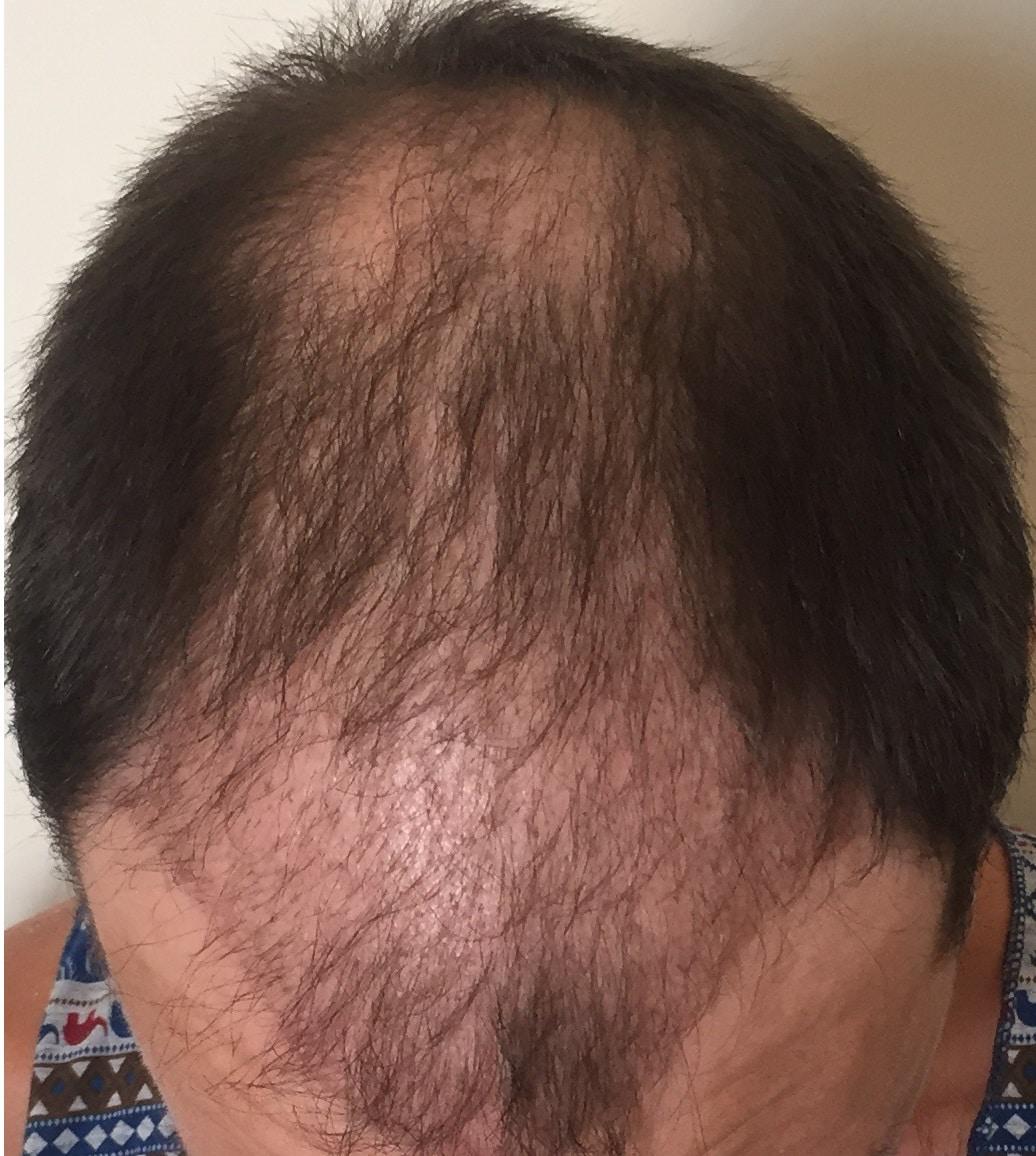 3-months-hair-transplant-suregry
