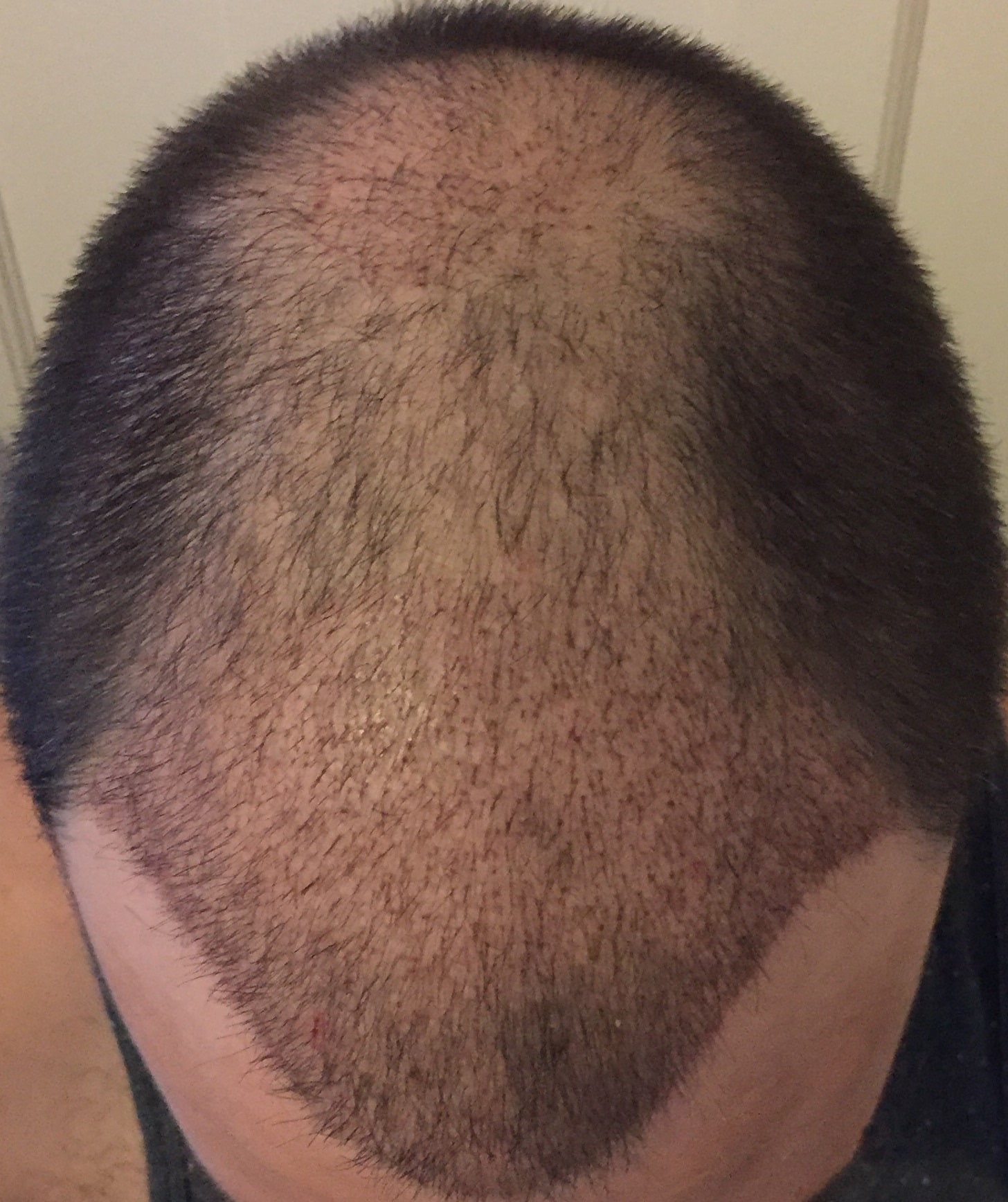 3-weeks-hairpalace