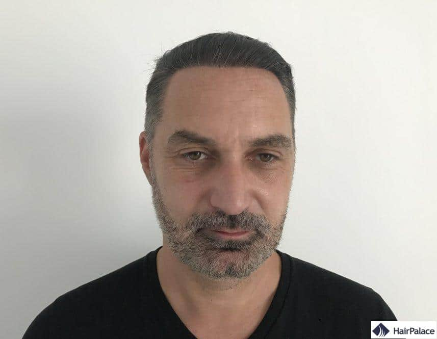 1 year after hair transplant 1