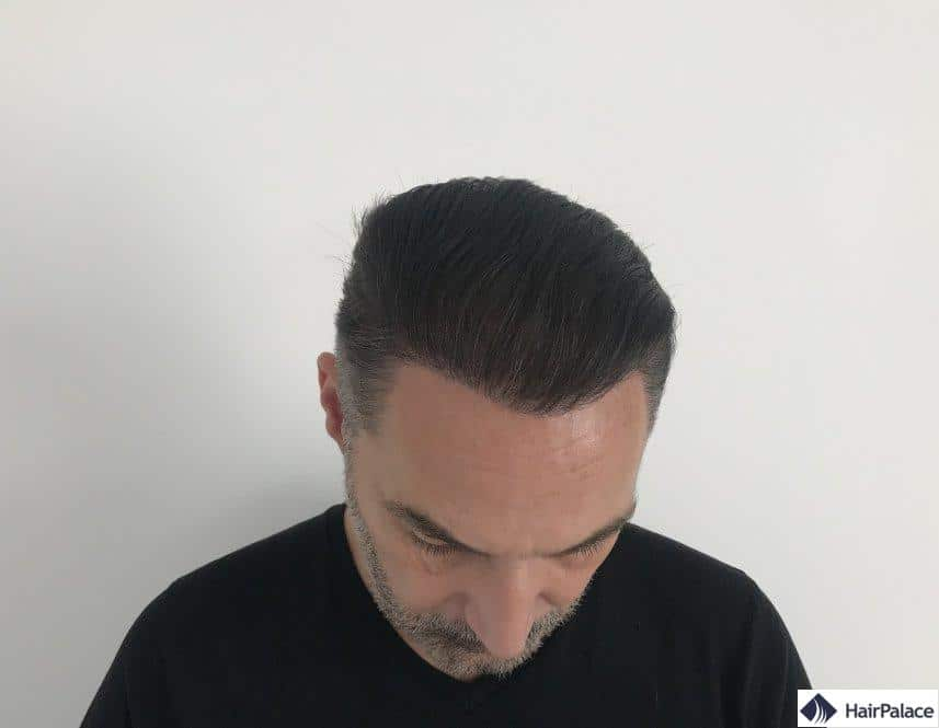 1 year after hair transplant 2
