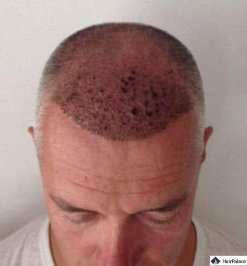 Pascal 1 semaine après la greffe de cheveux