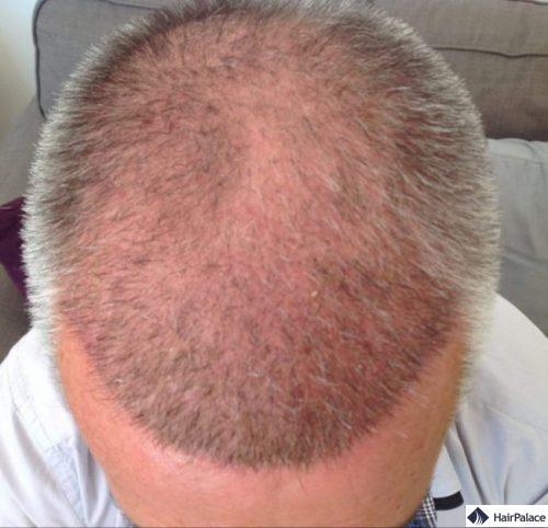 Pascal 3 semaines après la greffe de cheveux