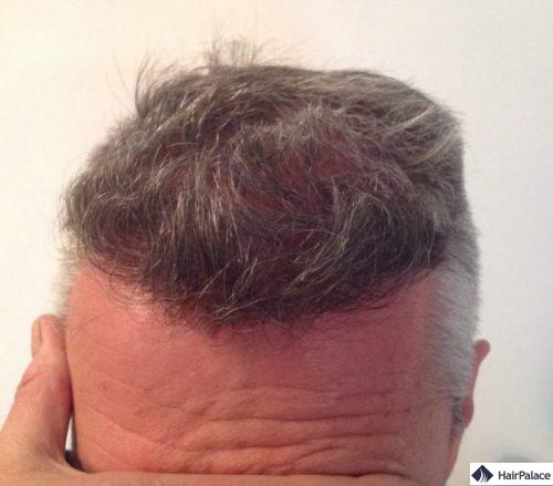 Pascal 6 mois après la greffe de cheveux