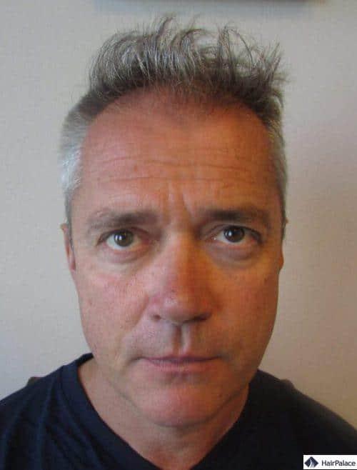 Pascal avant la greffe de cheveux