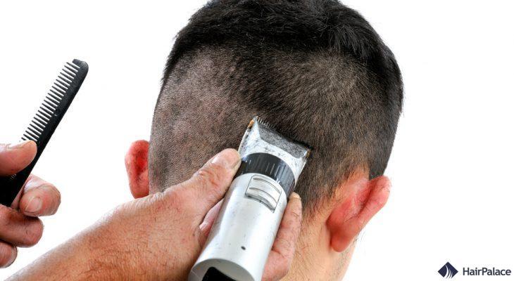 coupe de cheveux avant la implant capillaire