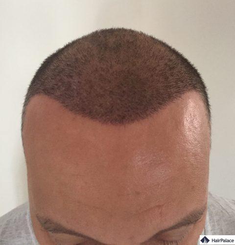 Valko 1 semaine après la greffe de cheveux