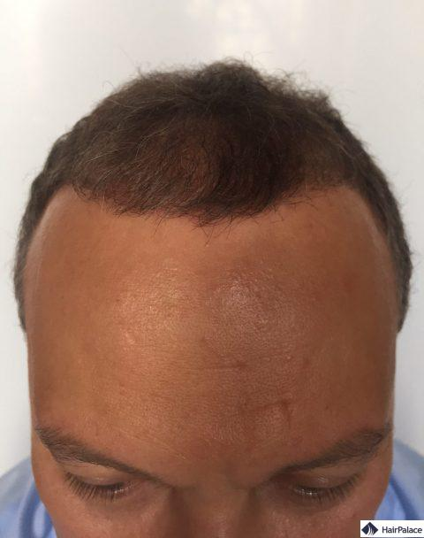 Valko 3 mois après la greffe de cheveux