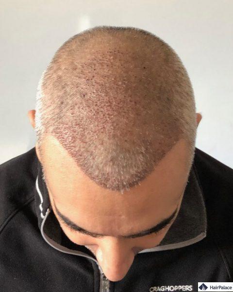 Ezra 1 semaine après la greffe de cheveux