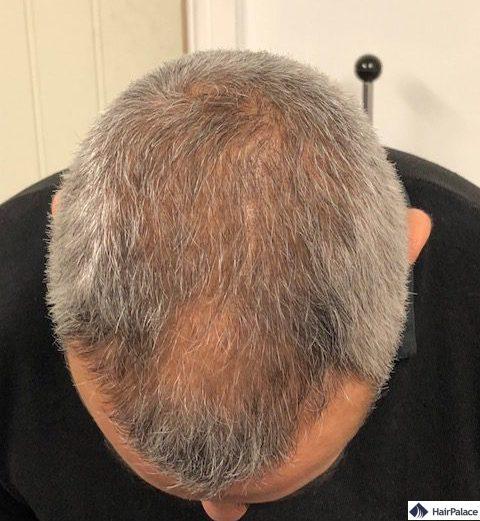 3 mois après la greffe de cheveux