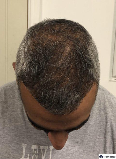 Ezra 6 mois après la greffe de cheveux