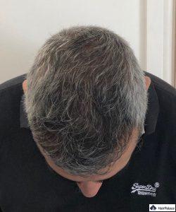 Résultat 1 année après l'implant capillaire