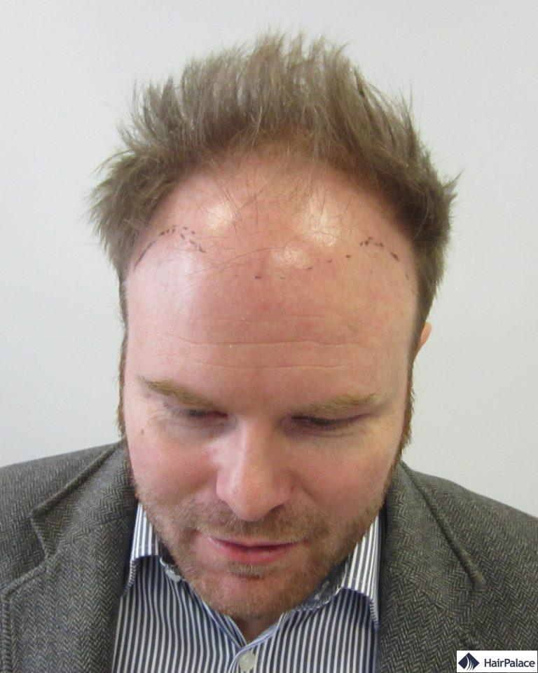 David avant la greffe de cheveux