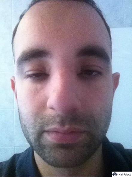 3 jours après la 1ère intervention - sans stéroides et massage