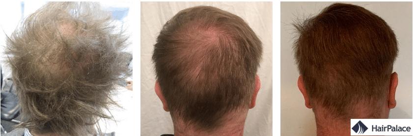 La zone donneuse avant apres la greffe de cheveux
