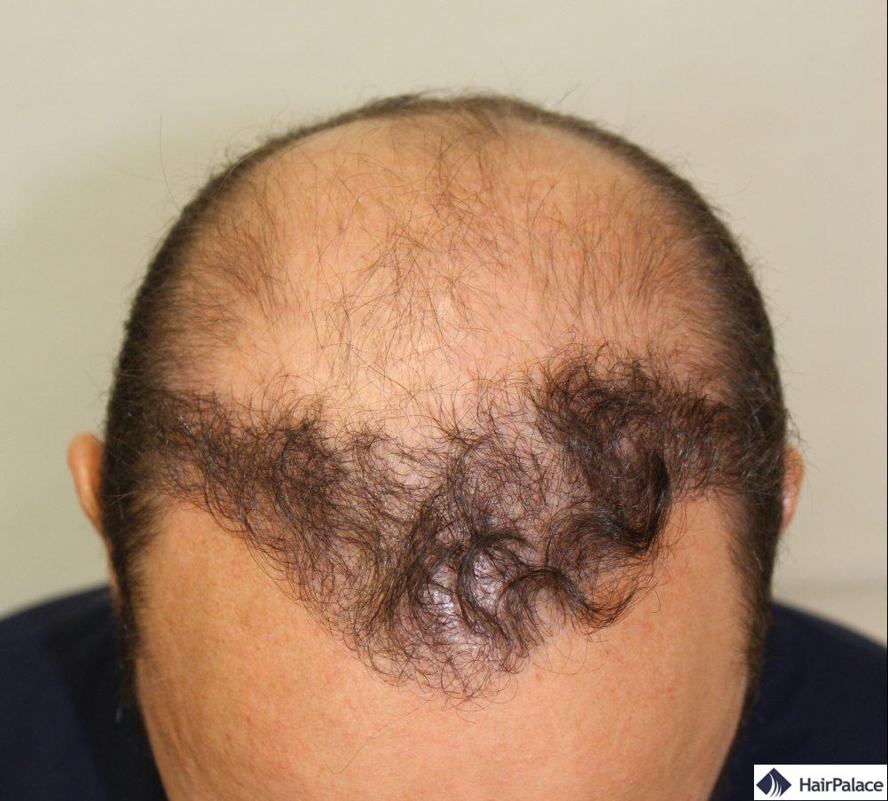 Le résultat de la première greffe de cheveux