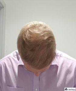 Résultat final après la greffe de cheveux