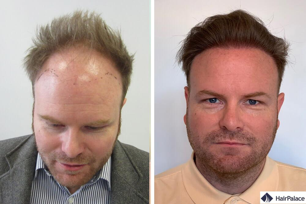 David avant et après sa greffe de cheveux FUE