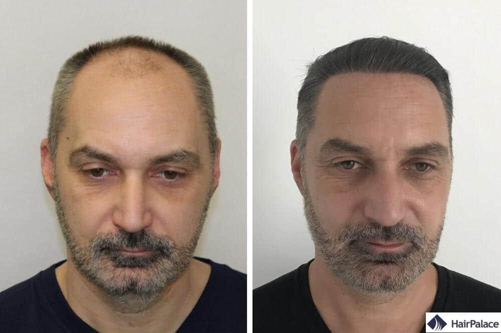 Nick avant et après sa greffe de cheveux