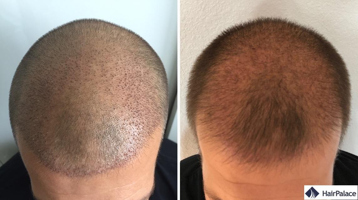 La zone implantée de Sam 1 et 3 semaines après la greffe