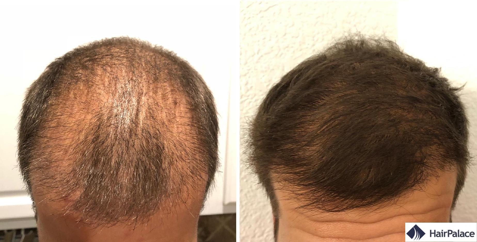 La zone frontale 3 et 6 mois après la greffe