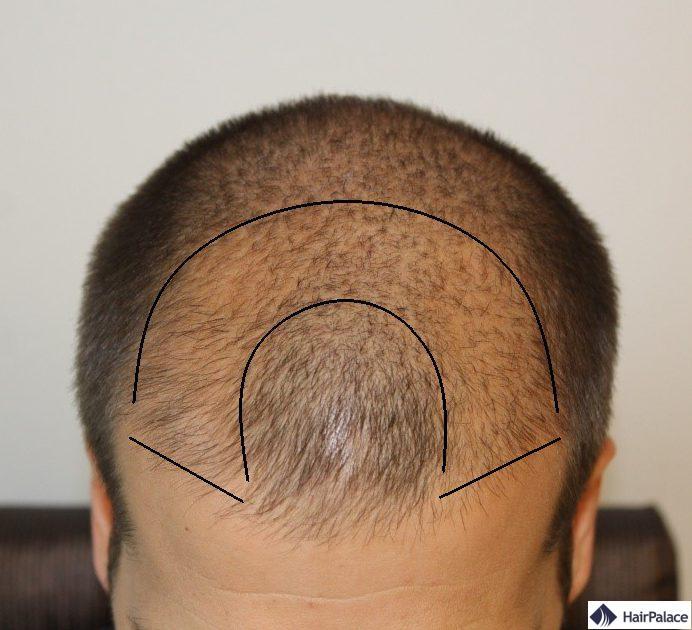 Cheveux clairsemés sur le front