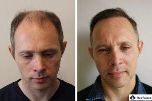 greffe de cheveux à Genève