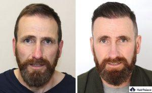 meilleur greffe de cheveux Irlande
