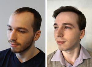 greffe de cheveux Montpellier résultat