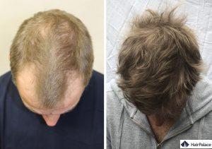greffe de cheveux Reims résultat