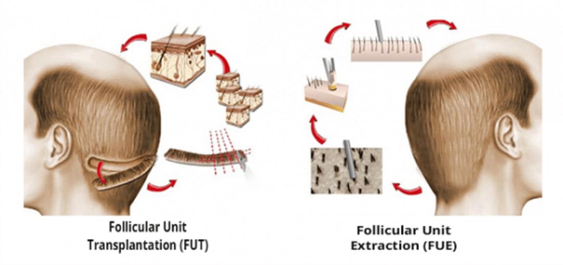 FUT vs FUE2 méthode de greffe de cheveux