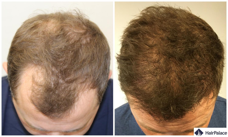 Neil avant et 1 année après sa greffe de cheveux