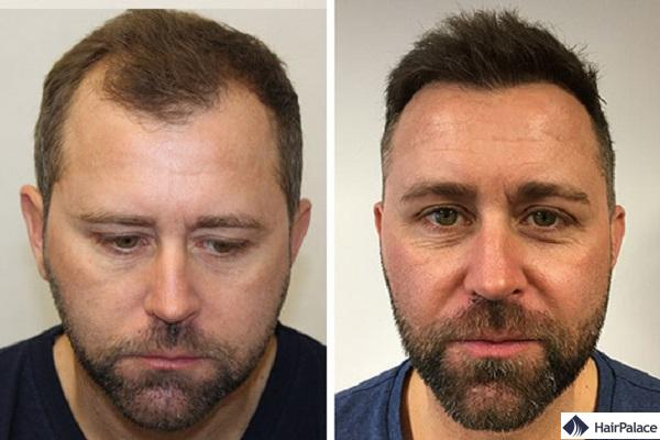 avant et 1 année après sa greffe de cheveux Neil