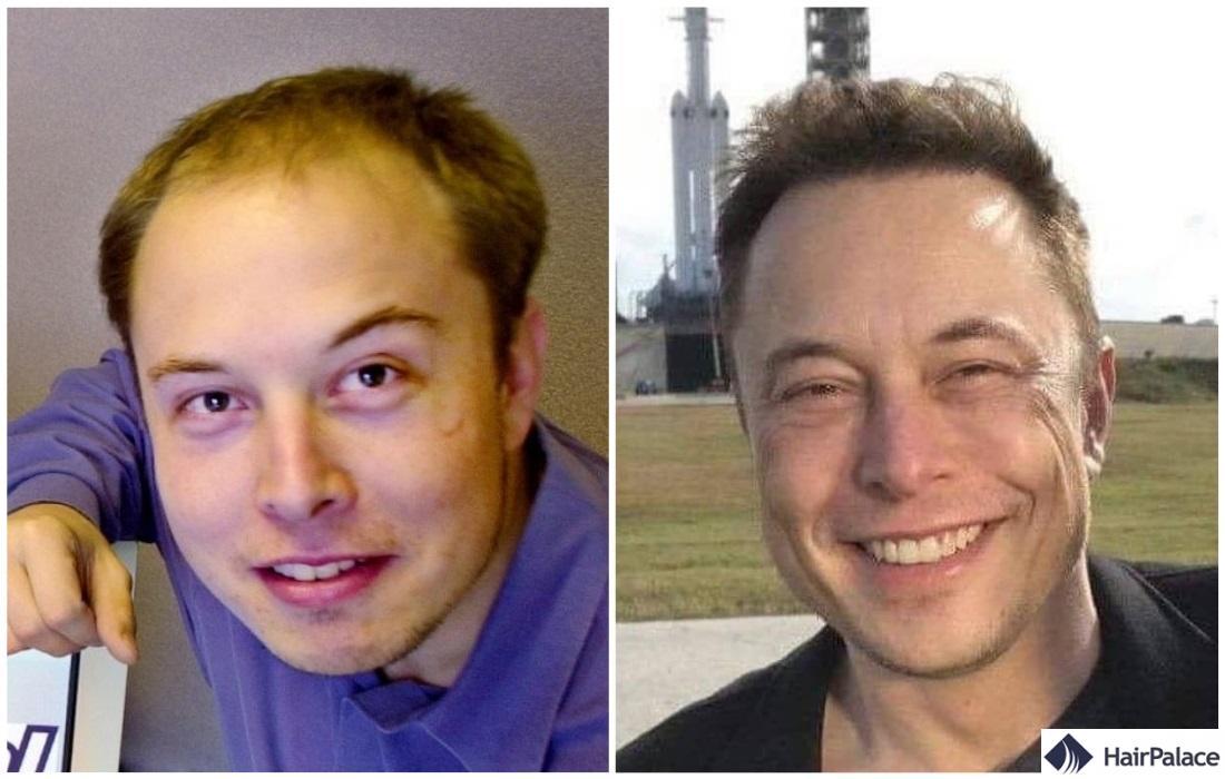 Elon Musk avant et après la greffe de cheveux