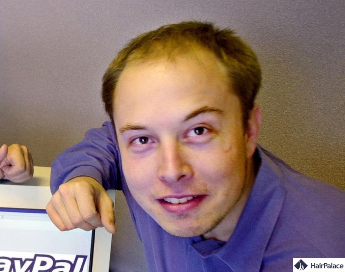Jeune Elon Musk souffrant de perte de cheveux