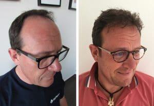 greffe de cheveux Aix en Provence résultat
